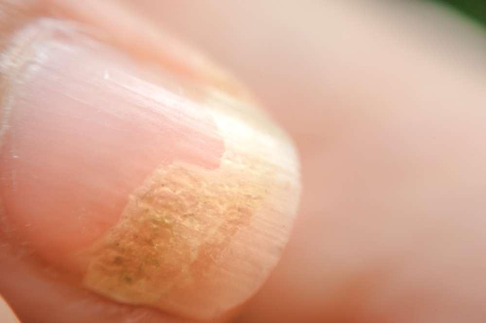 Infezioni fungine delle unghie, caratteristiche e cura