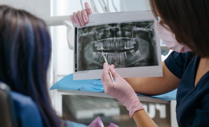 Malattie dei denti – le più temute